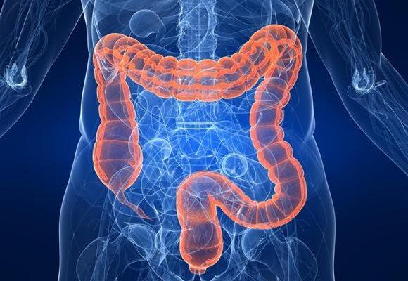 あなたの腸は大丈夫?リーキ―ガット症候群(腸漏れ)を調べるには 米国ラボ ドクターズ・データ社のゾヌリン検査