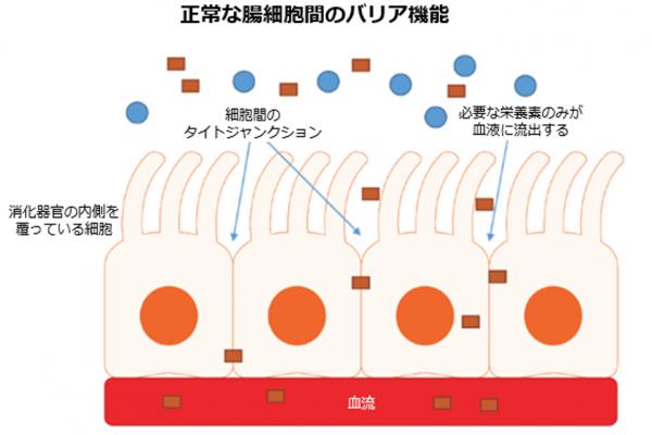 腸漏れ図1